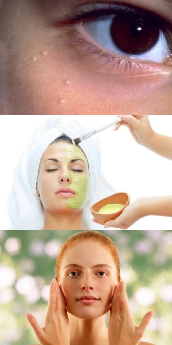 Избавиться от белых точек на лице можно очень просто! Вот 5 самых эффективных натуральных рецептов!