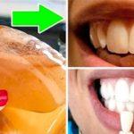 Полощите ротовую полость одним простым ингредиентом и смотрите, что произойдет с вашими зубами
