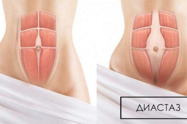 Упражнения от диастаза, от обвисания живота для женщин.