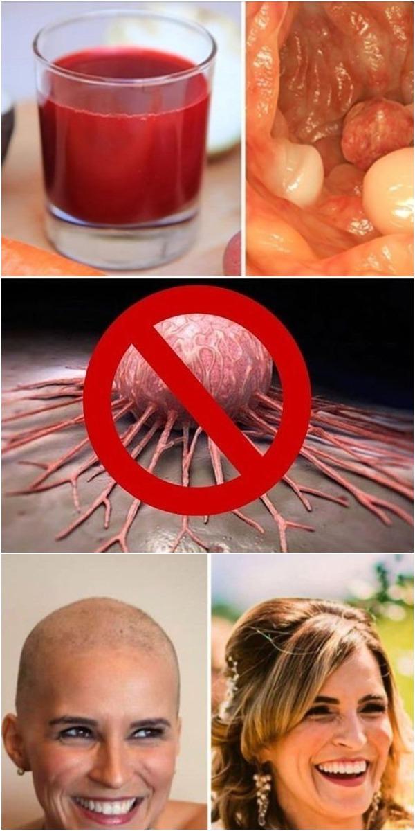 Рак последней стадии излечим. Поделитесь этим! Возможно кому то это спасет жизнь!