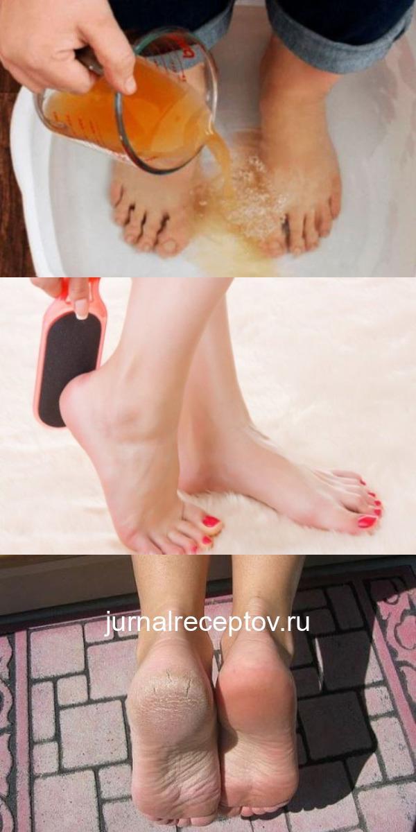 3амочите ноги в уксусе один раз в неделю — и удивитесь, как многие недуги просто пропадут!
