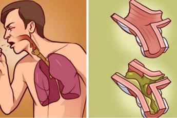 Когда в ваших легких скапливается слизь, это лучшее лекарство! Это 100% натуральное средство и действует всего за несколько часов!