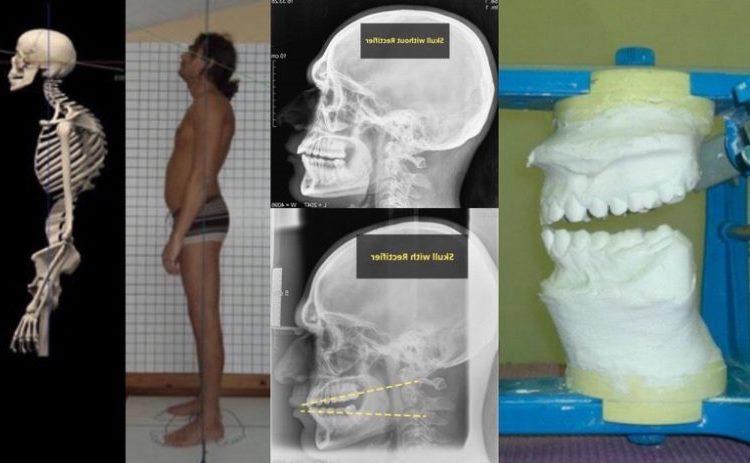 Как связаны зубы и спина 5