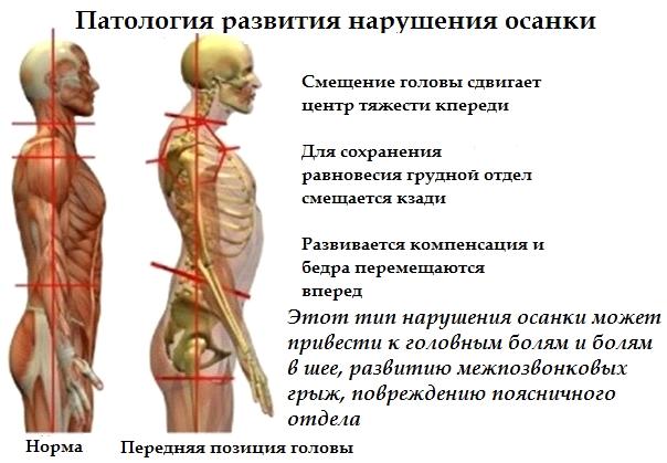 Как связаны зубы и спина 7